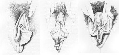 Photo de corps féminin poilue